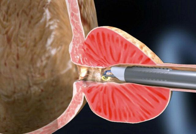Видео биопсии предстательной железы